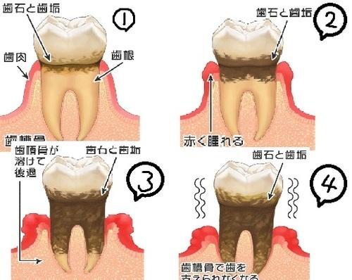 歯科ブログ.jpg